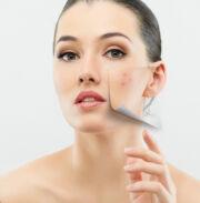 hogyan kell kezelni a vörös foltok testének kiütését vörös foltok jelentek meg a nyakon és viszkető fotón