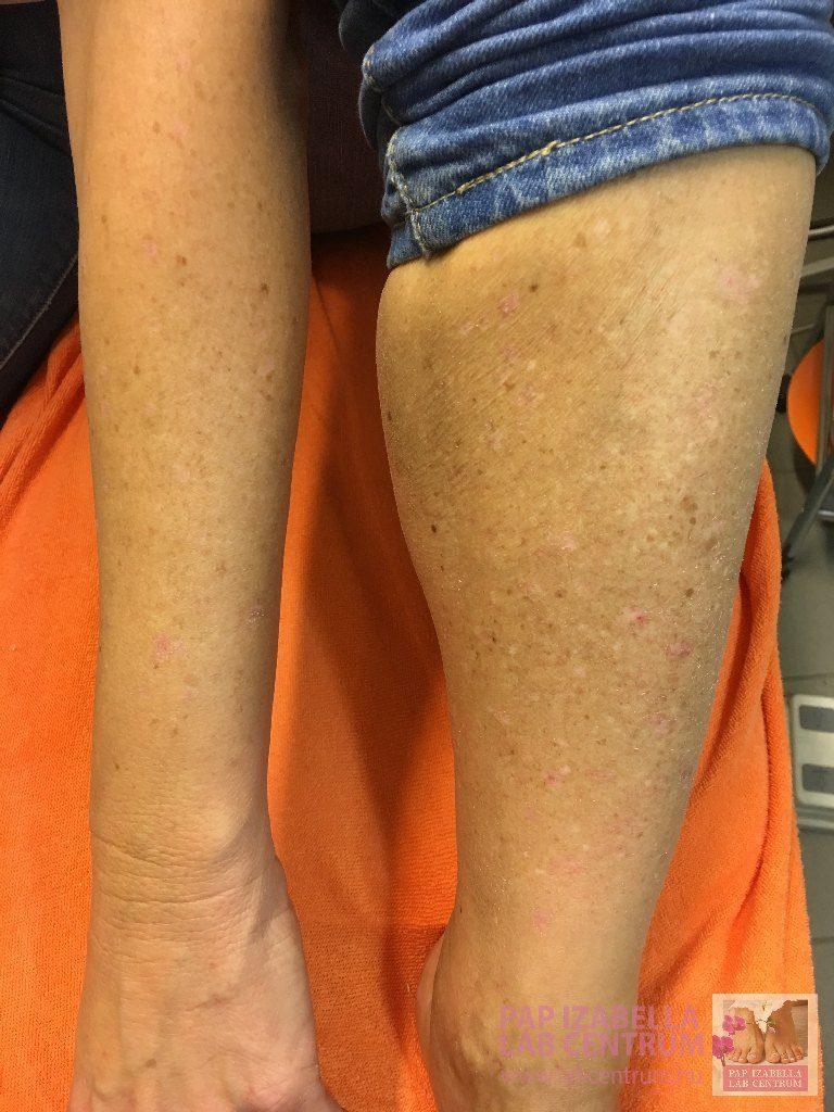 gyógyítani a láb pikkelysömörét meddig kezelik a pikkelysmrt