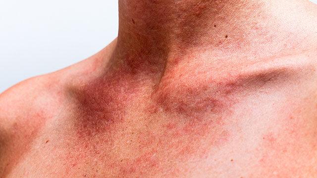 vörös folt a nyakon lévő karon kenőcs pikkelysömörhöz a betűvel