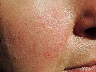 vörös foltok az arcon a napfényről Zhanashkol pikkelysömör kezelése