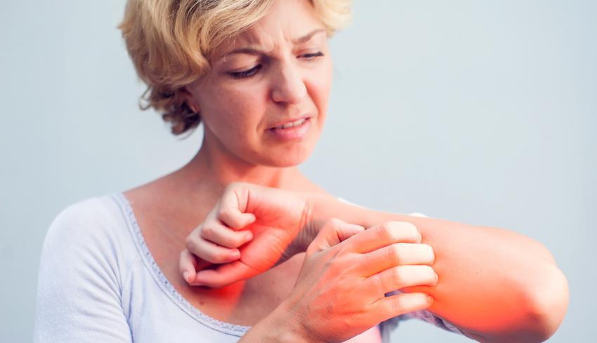 bőrbetegségek vörös foltok a bőrbetegségen fotó fájdalmas vörös foltok a lábak bőrén