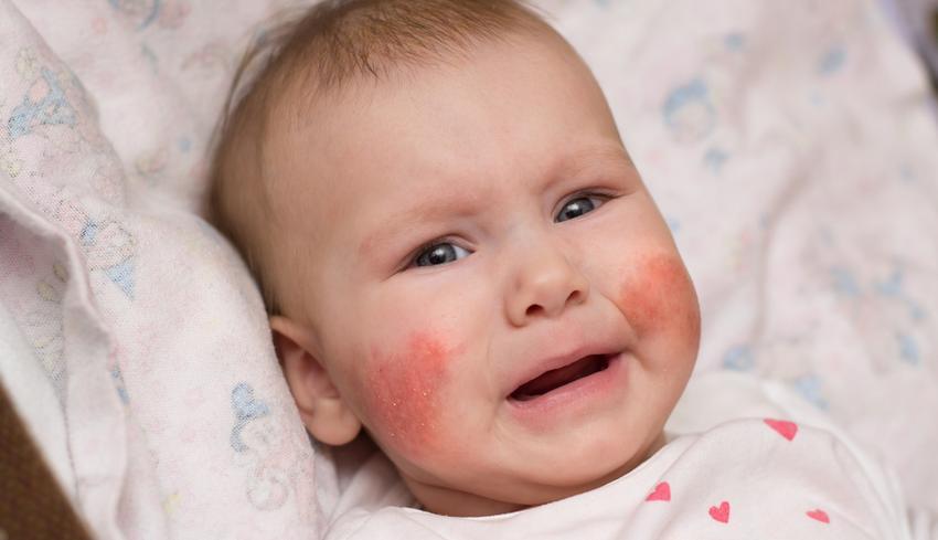 az arcon a bőr lehámlik és vörös foltok jelennek meg
