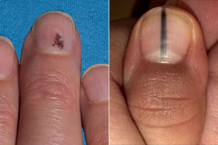 vörös kézű folt jelent meg a kézen a pikkelysömör kezelésének legegyszerűbb módja