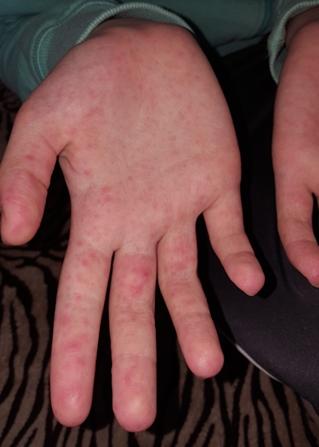a kezén élénkpiros foltok viszketnek vörös folt, amelynek középpontja a bőrön van