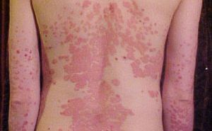 vörös foltok az arcon az antibiotikumok után pikkelysömör kezelése Tuapse-ban