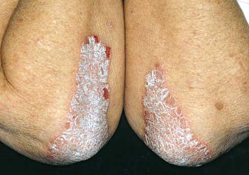 vörös foltok jelennek meg a bőr kezelésén