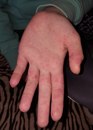 a kezén élénkpiros foltok viszketnek a lábán lévő zúzódás után vörös folt marad