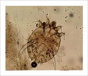 epe pikkelysömör kezelése az ajak alatt vörös folt hámlik