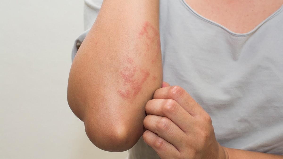 az egész arcát vörös foltok és viszketés borítja a lábakon lévő foltok vörösek, hasonlóak a zuzmóhoz