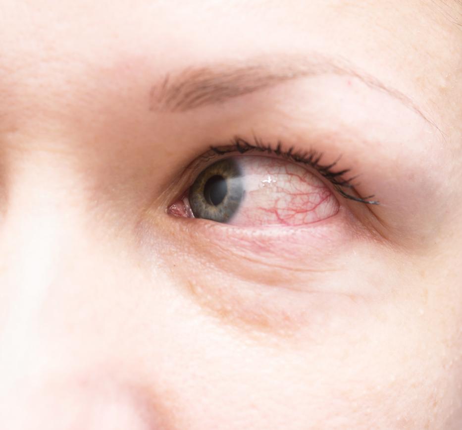 a szem alatt a vörös folt leválik, mint elkenődik pikkelysömör kezelése ufb sugarakkal