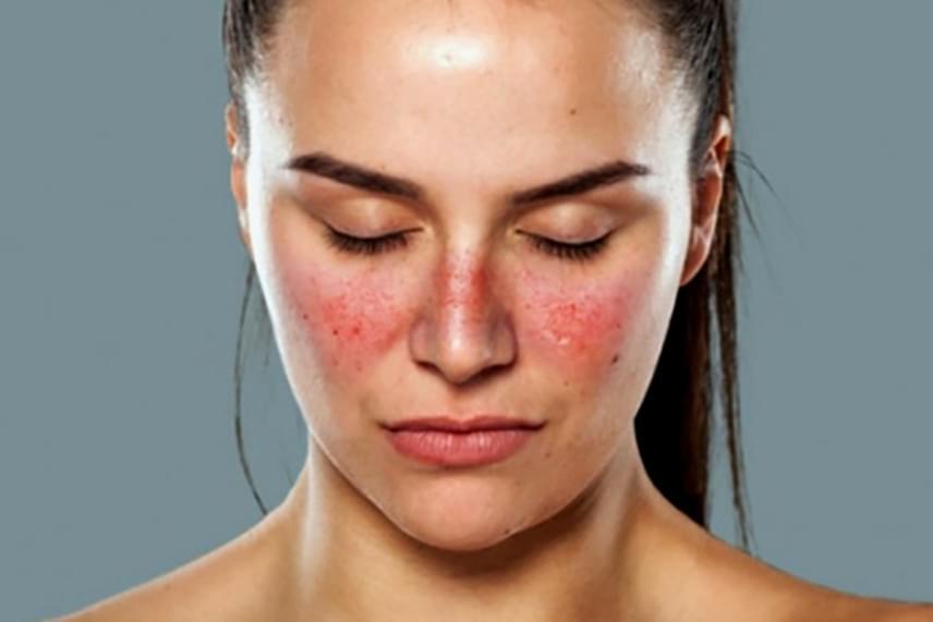 az arcon lévő vörös folt oka