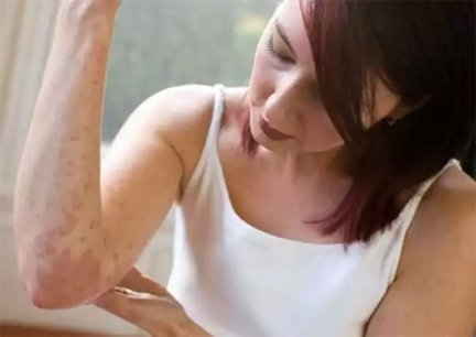 gyanta kenőcs segít a pikkelysömörben