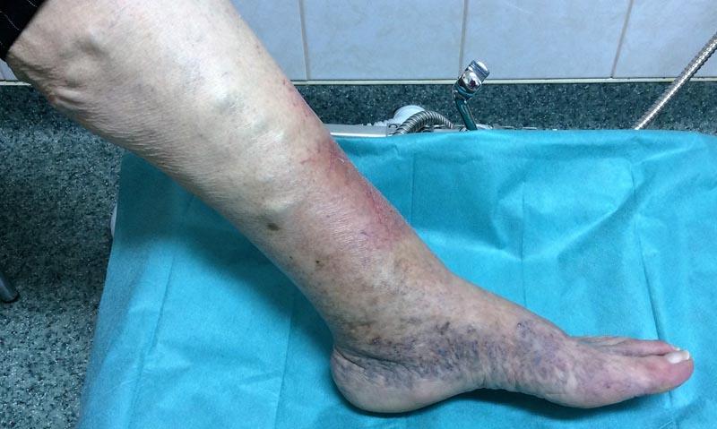 vörös folt jelent meg a láb alján