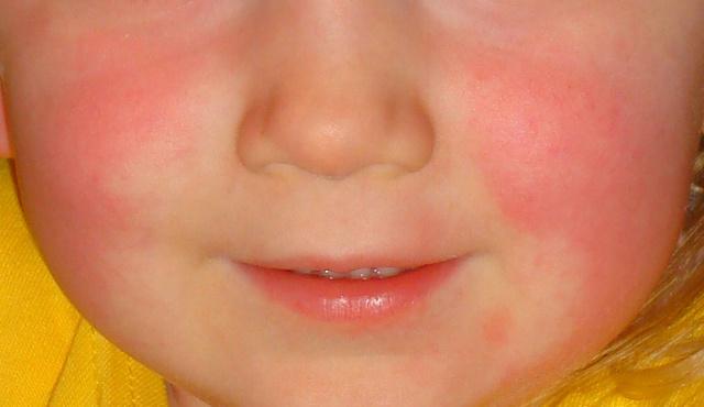 arc piros foltokkal mit kell tenni pikkelysömör hidzsma kezelse