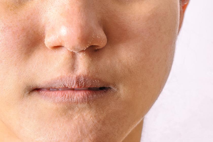arc piros foltokkal mit kell tenni hogyan lehet megszabadulni a guttate pikkelysömörétől