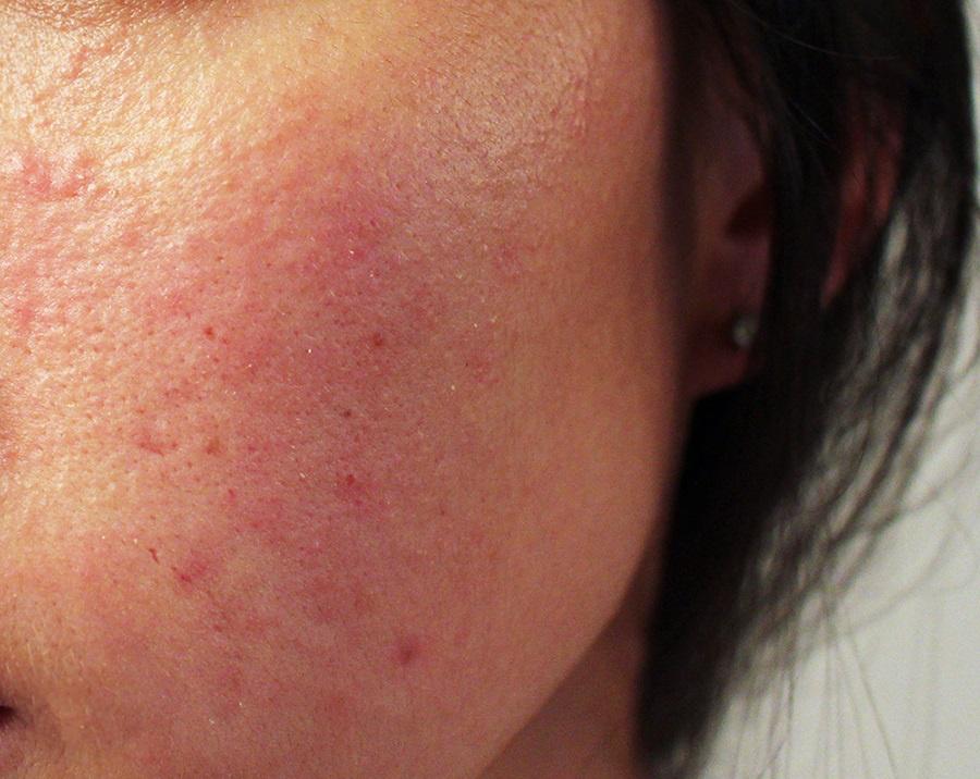 hogyan lehet pikkelysömör gyógyítani homeopátiával piros folt jelenik meg a kar alatt viszket