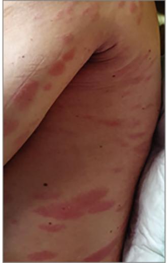 a vállán vörös foltok viszketés kezelés vörös foltok a lábon zúzódás után