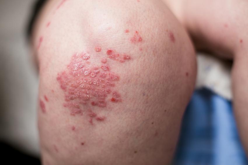 pikkelysömör kezelésére, mint hogyan lehet eltávolítani a vörös foltokat a bőrkeményedés után