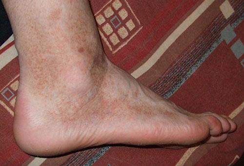 duzzadt lábak és vörös foltok jelentek meg miért vörös foltok a kezeken forrón viszketnek