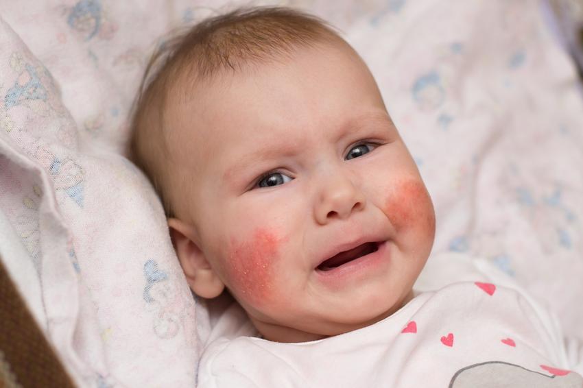 bőrbetegségek vörös foltok a bőrön vörös foltok az arcon és a szemöldökön