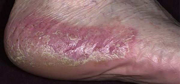 pustuláris pikkelysömör kezelése népi gyógymódokkal