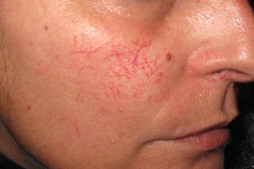a szem alatt a vörös folt duzzadt és viszket vörös foltok jelennek meg a bőr vakarása után
