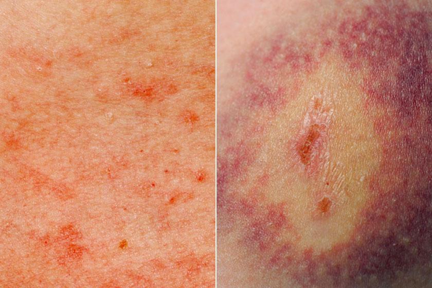 Piros foltok a felnőtt testén fotóval: a nyakon, az arcon, a karokon és a lábakon