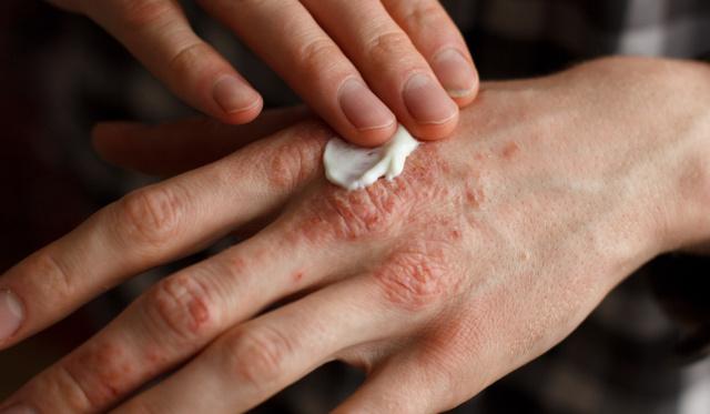 borított lábak vörös foltokkal és viszketéssel pikkelysömör kezelés természetes módon ingyenes letöltés