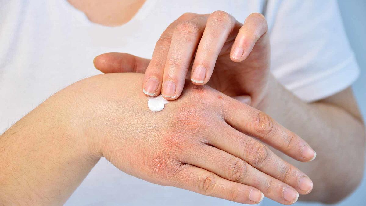 halolaj pikkelysömör kezelése a fejbőrön vörös foltok hámlasztó kezelés