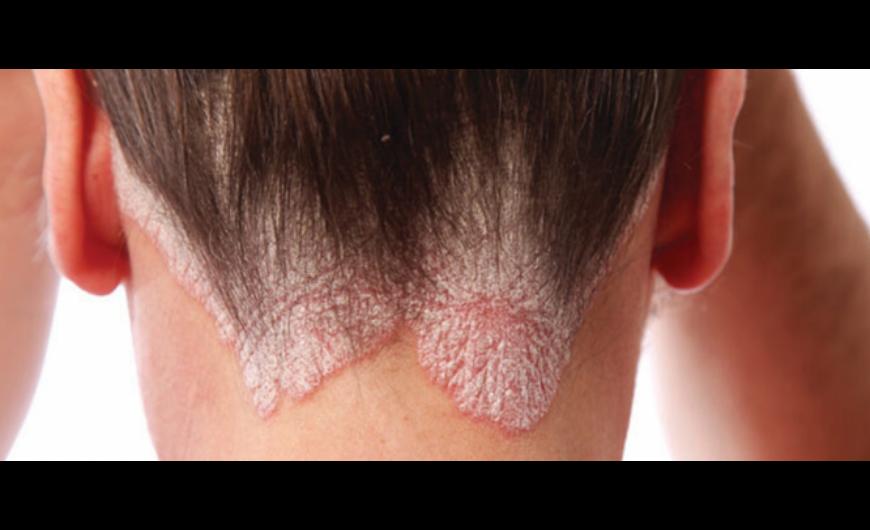 vélemények a pikkelysömör kezeléséről stelarral szeborreás pikkelysömör kezelése