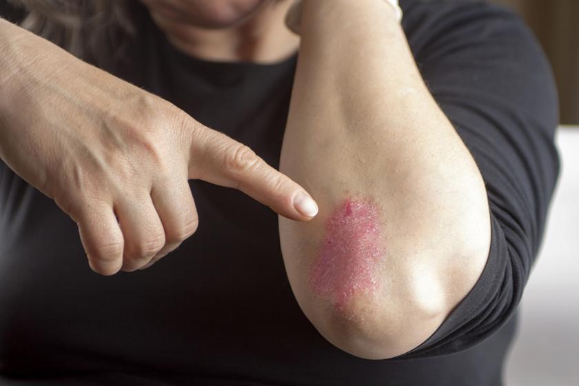 pikkelysömör korai kezelés fotó pikkelysömör tünetei és kezelési következményei