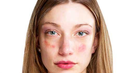 vörös pikkelyes foltok az arcán bodza pikkelysömör kezelése