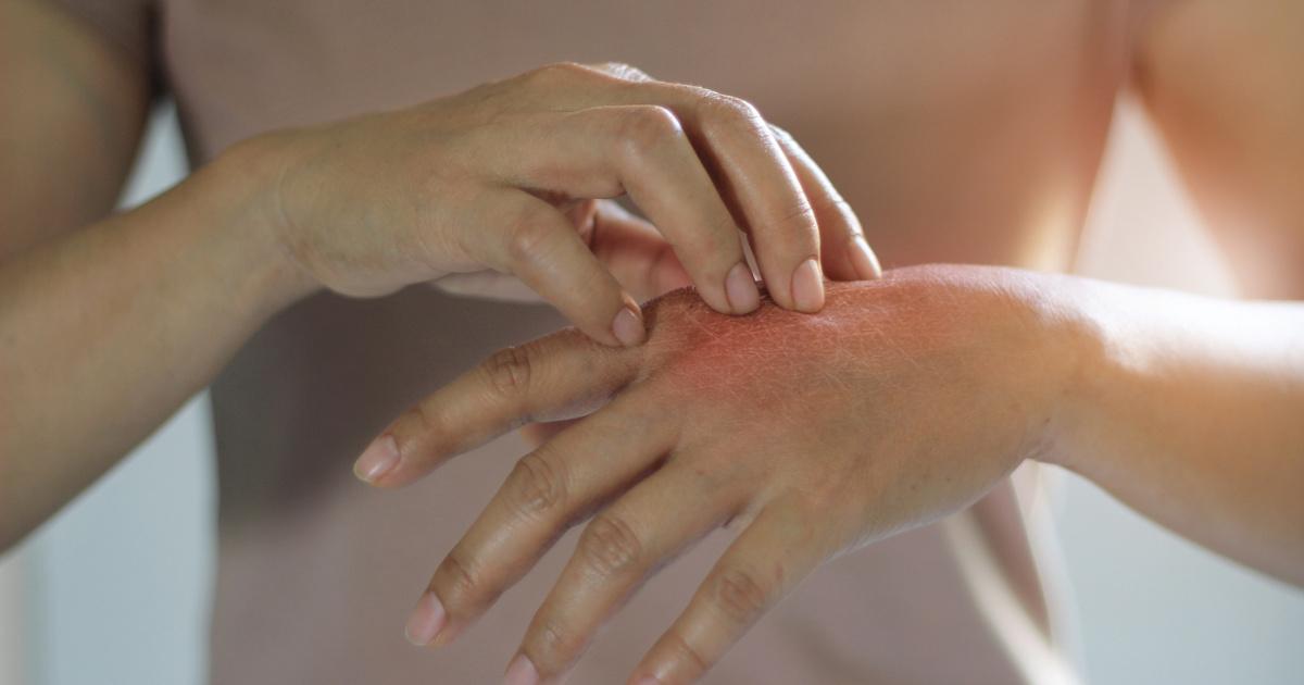 piros foltok a kezeken télen pikkelysömör kezelés hajnali kenőcs