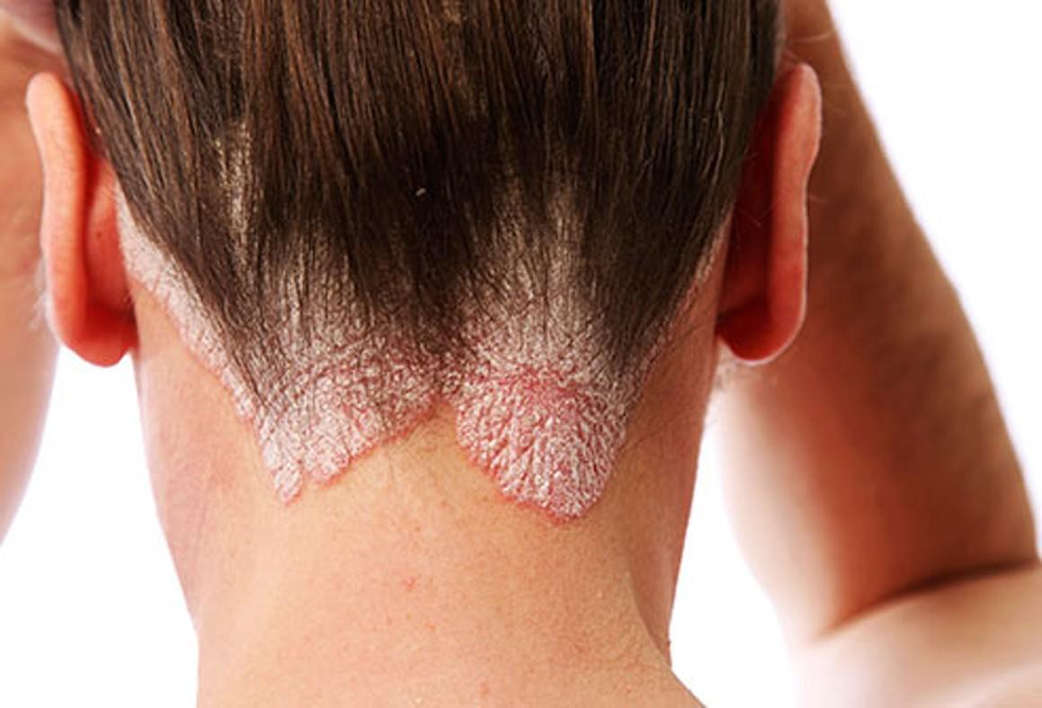 Viburnum pikkelysömör kezelése aszpirin arcmaszk a vörös foltok ellen