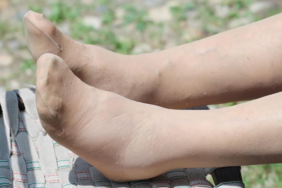 egy piros folt pattant fel a lábán, mit kell tennie Kenologist pikkelysömör kezelése