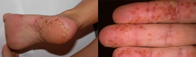 bodza pikkelysömör kezelése aszpirin arcmaszk a vörös foltok ellen