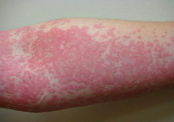 fertőző bőrbetegségek vörös foltok