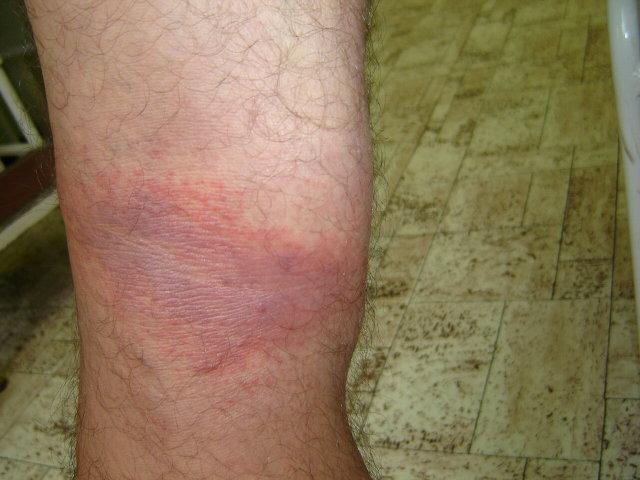 fájó vörös foltok a lábakon