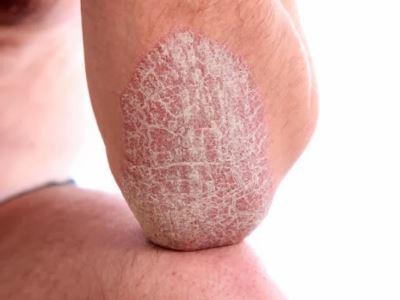 guttate pikkelysömör kezelése hogyan kell kezelni az orr vörös foltját