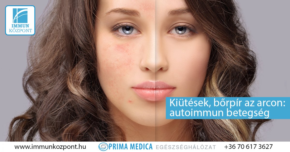hámozzon le piros foltokat az arcon, mit tegyen az arcon vörös foltok viszkető duzzanat