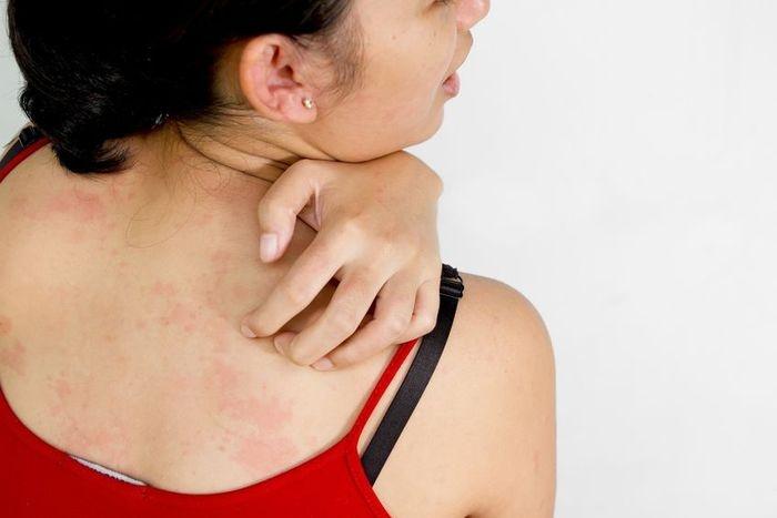 piros foltok a hátán mi az, hogyan kell kezelni vörös folt az arcon forróbb