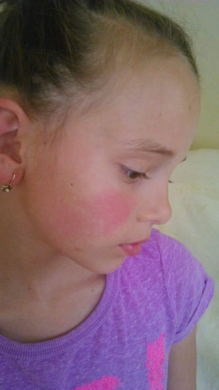 A gyermek homlokán vörös foltok jelennek meg