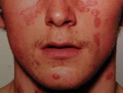 vörös foltok a lábán viszket, hogyan kell kezelni vörös foltok jelentek meg az arcon a hidegtől