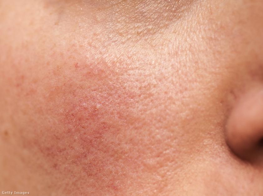 a kezeken lévő foltok viszketés nélkül vörösek eperlevél vörös foltokban népi kezelés