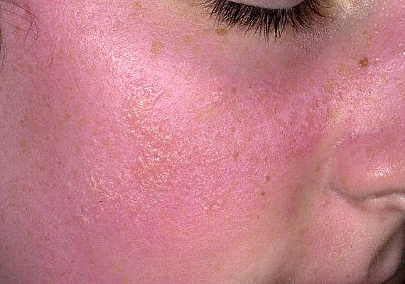 vörös foltok az arc bőrén fotó és a betegség neve olcsó kenőcsök pikkelysömörre a kezeken