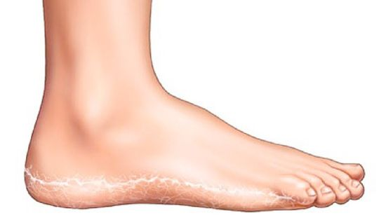 lábak piros foltokkal hogyan lehet megszabadulni a krém összetétele egészséges a pikkelysömörtől