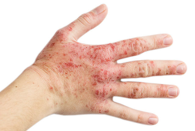miért viszketnek és hámlanak a kezeken lévő vörös foltok