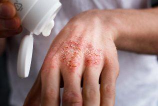 múmia pikkelysömörének kezelése fejbőrpír pikkelysömör kezelésével