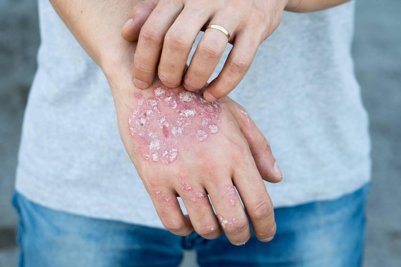 a fejbőrön vörös foltok hámlasztó kezelés