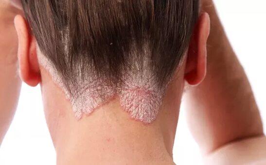 pikkelysömör a kezeken a kezelés kezdeti szakasza vörös foltok a kezeken a bőr alatt